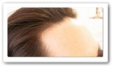 アップヘア発毛システム体験者の声